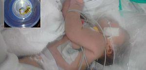 Bebê é picada cinco vezes por escorpião; animal foi encontrado no cordão umbilical