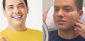 Wesley Safadão faz harmonização facial: 'Rostinho de bebê'