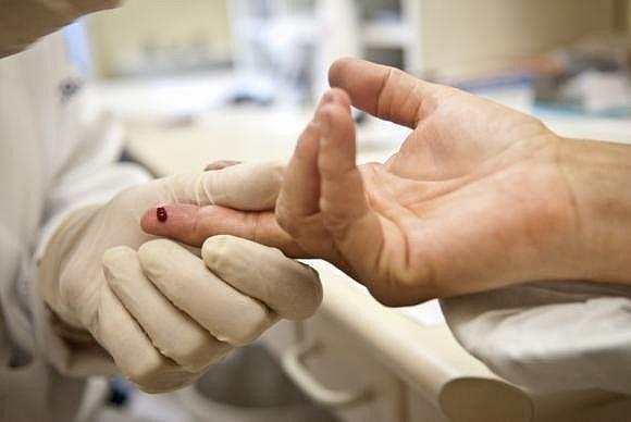 Teste rápido detecta, entre outras doenças, a presença do vírus HIV