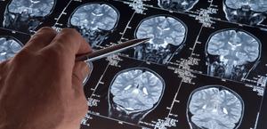Pacientes com Alzheimer tem risco até seis vezes maior de covid grave