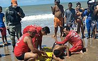 Vítima de ataque de tubarão na praia de Piedade