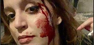 Brasileira é agredida por quatro portugueses em Lisboa: 'Impunidade'