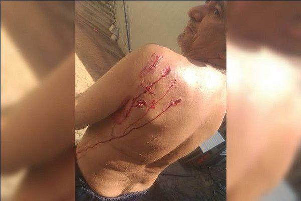 Homem é atacado por capivara enquanto mergulhava no Lago Paranoá