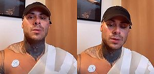 Leo Stronda tem 30% do corpo queimado após explosão de botijão de gás